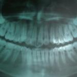 くりた歯科 歯レントゲン インビザライン 掛川 矯正歯科 掛川
