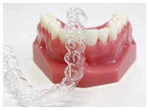 マウスピース矯正 くりた歯科