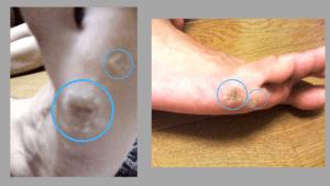足裏いぼの治療状況