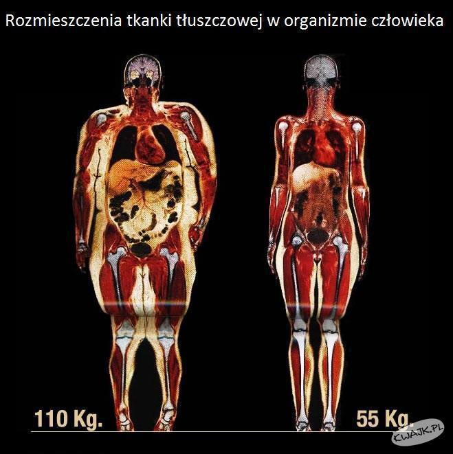 Znalezione obrazy dla zapytania tkanka tłuszczowa