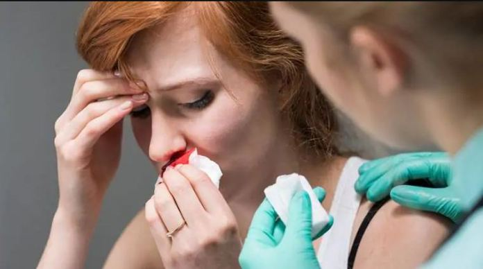 Nose bleeds usually are not serious and can be easily stopped. Here are some quick ways you can try if you are prone to nose bleeds during the summer season.