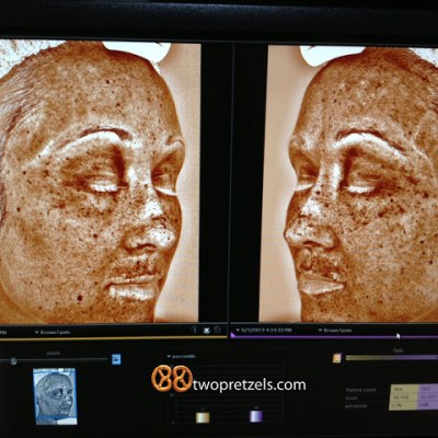 This will scare you. Subtitle: Wear sunscreen.