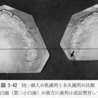 歯並び-歯列周長