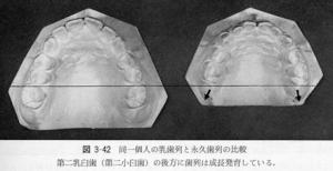 永久歯列と乳歯列との歯列周長の比較