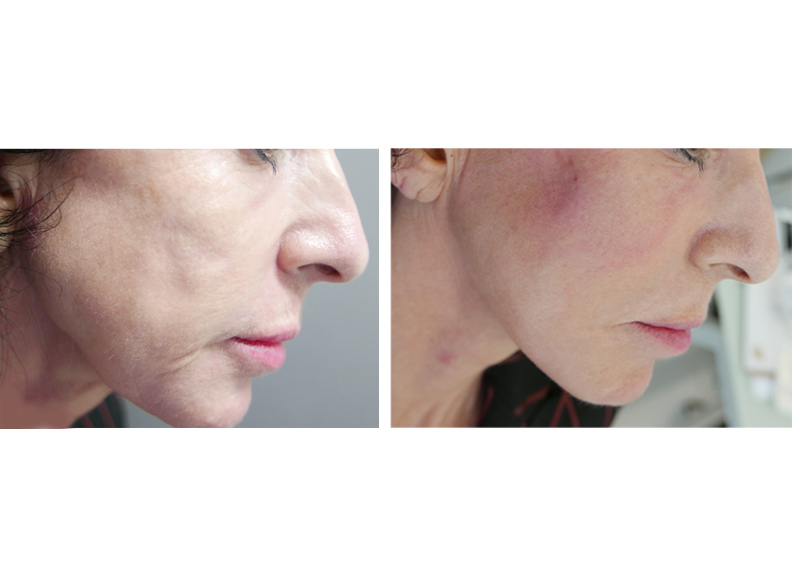 take a look at the future of skin rejuvenation: Uvence