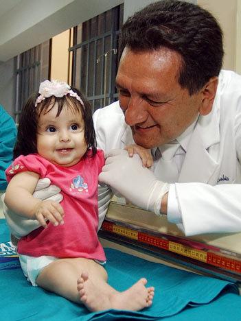 Rare Birth Deffects