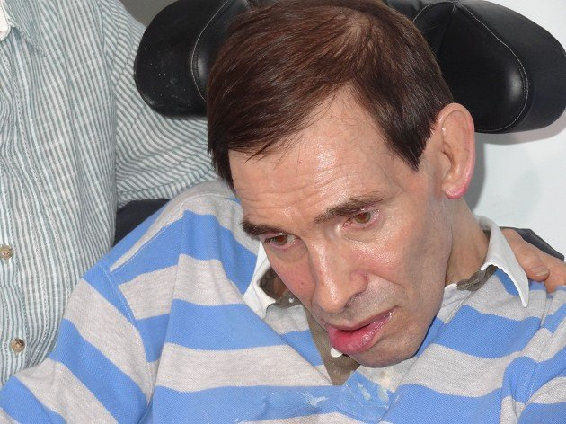 Tony Nicklinson suffered from locked-in syndrome and died at home in Melksham, Wiltshire