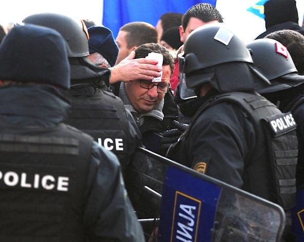 <p>               A supporter of the leftist opposition covers his wound after being hit by a rock during a protest over the national budget, in Skopje, Macedonia, on Monday, Dec 24, 2012. About 3,000 demonstrators in two opposing groups Monday threw eggs, stones, sticks and fruit at each other, injuring at least one person. Police were trying to prevent opposition supporters from entering Parliament. (AP Photo/Vangel Tanurovski)