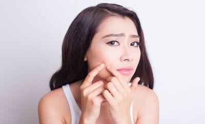 DIY : 3 secrets de beauté pour lutter contre l'acné
