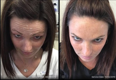 botox before and after forehead