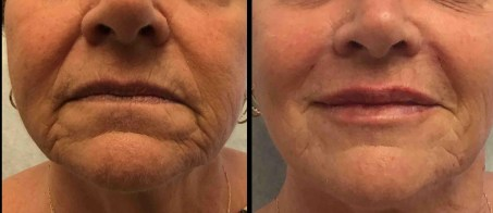 juvederm before and after nasolabial