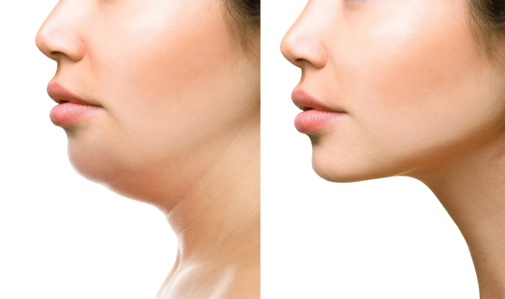 what is kybella and how does it work