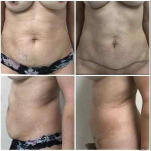 MINI Abdominoplasty 50 years old