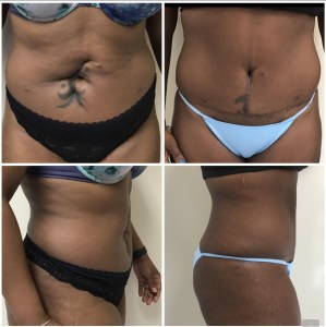 Abdominoplasty 49 years old