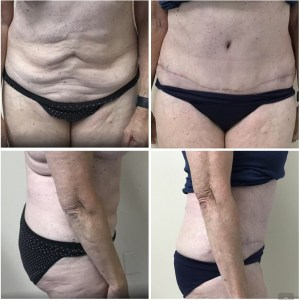 Abdominoplasty 73 years old