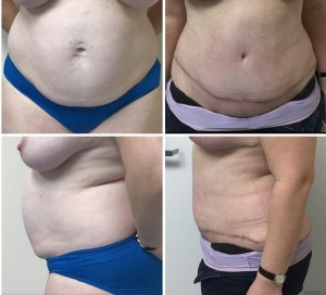 Abdominoplasty 40 years old