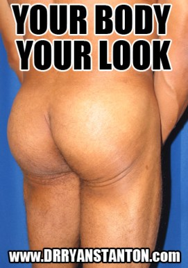 buttock-implants-los-angeles-12-2015-4