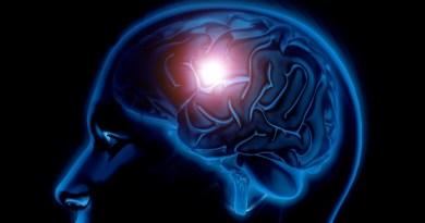 Aneurismas cerebrales: silenciosos y mortales