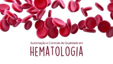 Photo of Automação e Controle de Qualidade em Hematologia