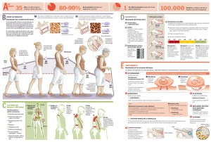 Infografia sobre Osteoporosis