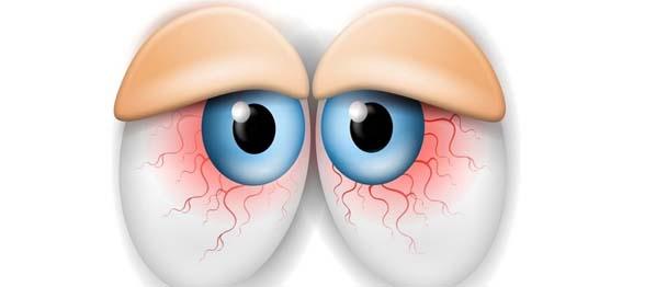 Síndrome del ojo seco: Xeroftalmia.