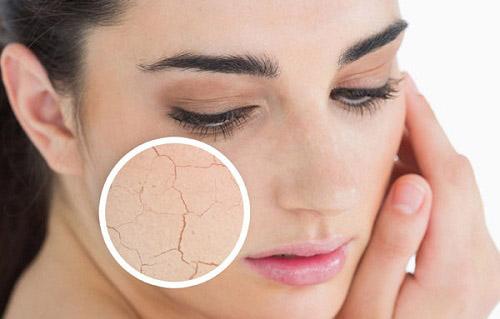 Resultado de imagen de piel deshidratada