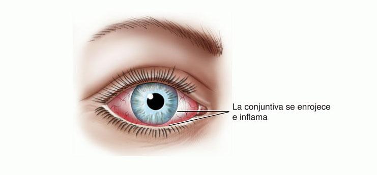 Conjuntivitis infecciosa, algo más que un ojo rojo