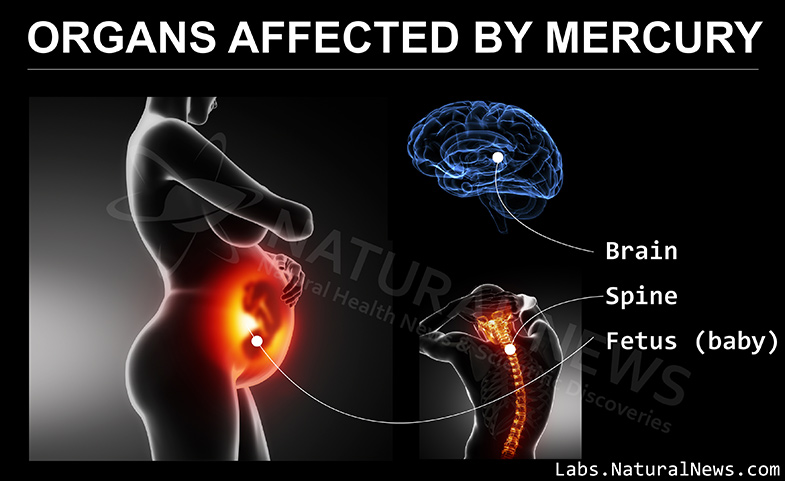 https://i2.wp.com/labs.naturalnews.com/Images/Organs-Affected-by-Mercury.jpg