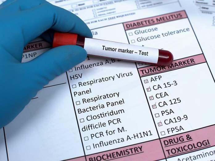 Tumor marker tests