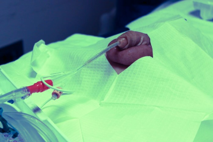 Urethral Catheterization