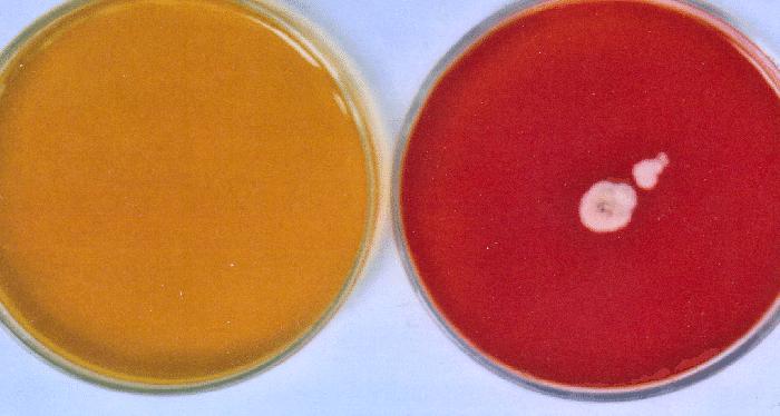 Dermatophyte test medium agar