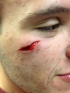 Young man with a facial laceration. Image used with patient permission.