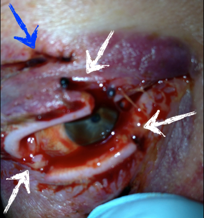 The blue arrow indicates a laceration through the upper eyelid.  The white arrows indicate lacerations involving the eyelid margins.