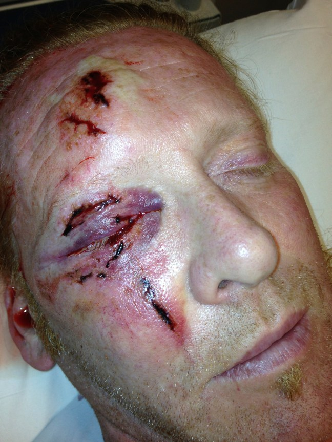 A patient with multiple lacerations to the eyelid after a fall.