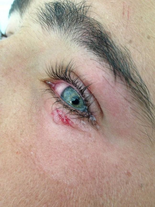 The laceration has been repaired with glue, sans mess or temporary glued-shut-eye-blindness.