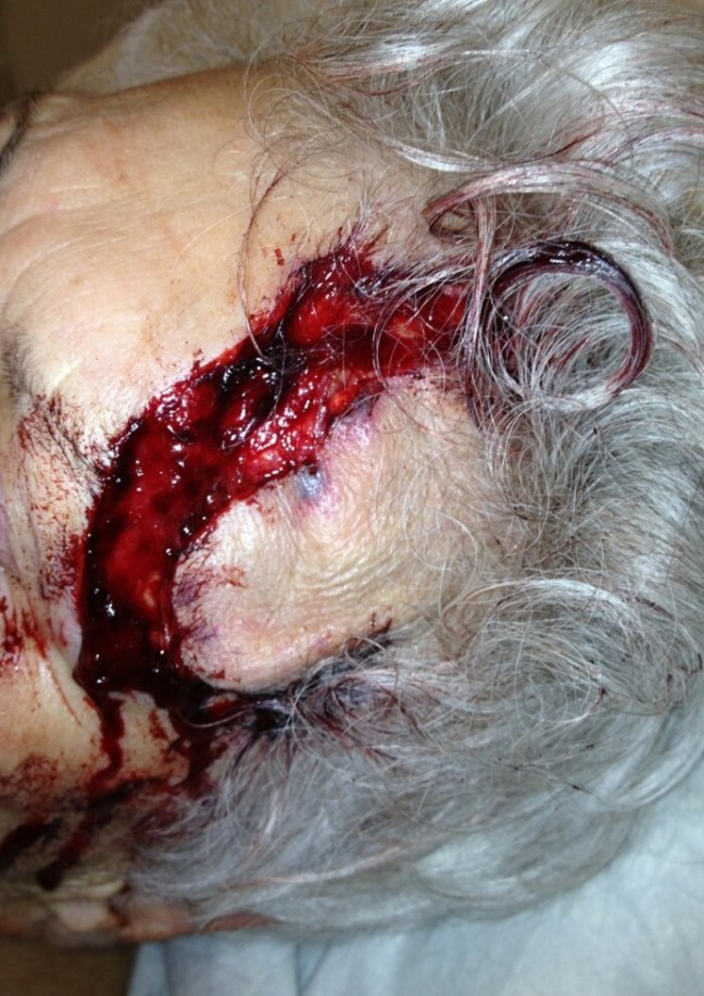 Extensive forehead laceration, with large delay in presentation due to poor mobility.