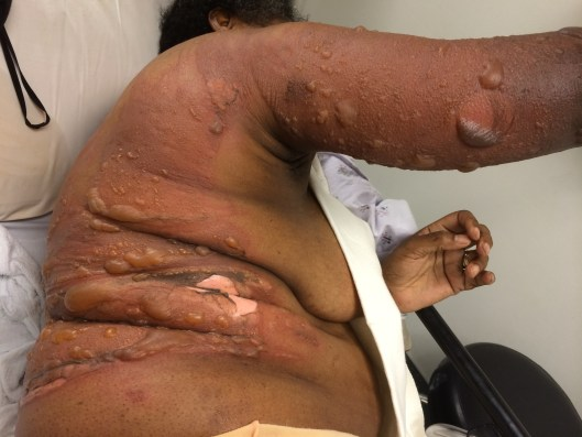 A 44 year old female with a scald burn injury to her trunk and arm.