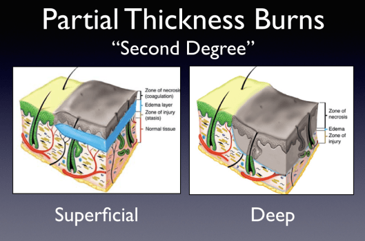 "This cartoon depicts the varying pathology described by the term ""second degree burn."""