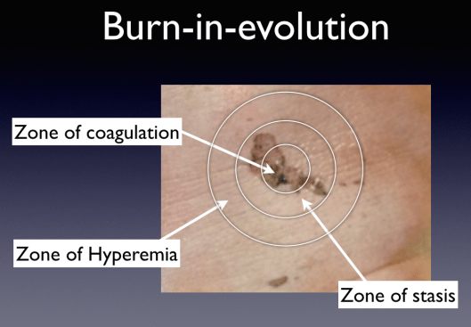 "Depiction of the ""burn-in-evolution"" model."