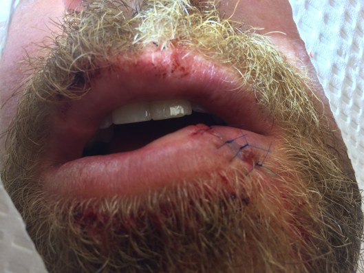 Sutures of a different color than the patient's facial hair are important to ensure each suture loop is readily identifiable for removal.