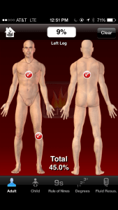 In uBurn lite, you check off body areas to indicate  areas burned.