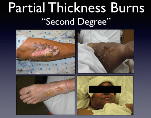 "The myriad appearances  in patients described as having ""second degree burns."""