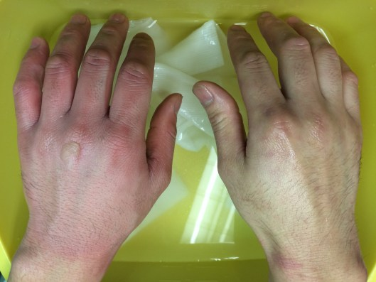 Superficial partial thickness burns of the hands, caused by hot oil while cooking.