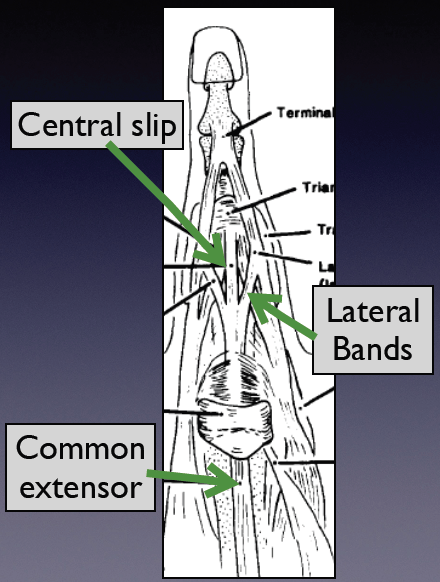 Extensor Tendon Anatomy. Adapted from