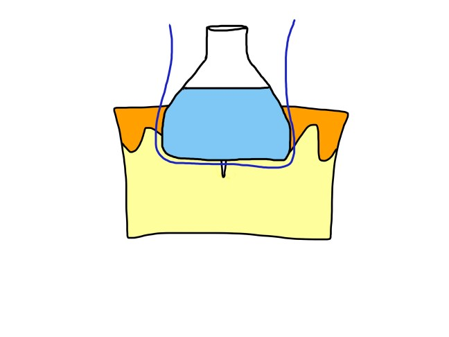 suture placement j w flask (1)