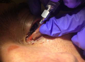 Cannulation of the lacrimal punctum to reveal a tear duct injury.