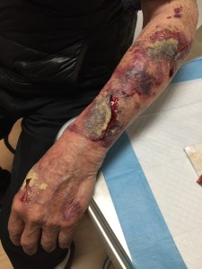 This patient applied a powder to his wound prior to hospital presentation