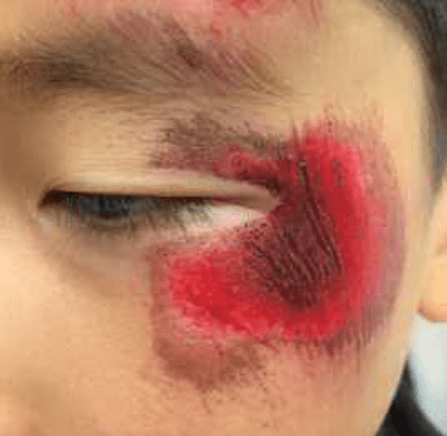 This Young Boy Was Pushed On To Asphalt And Sustained Significant Facial Abrasion Without