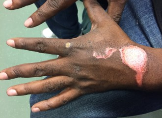 Especially on darker skin tones, this can be cosmetically disfiguring. The area over the extensor surface of the wrist merits additional attention to prevent contractures, akin to a superficial partial thickness burn wound.