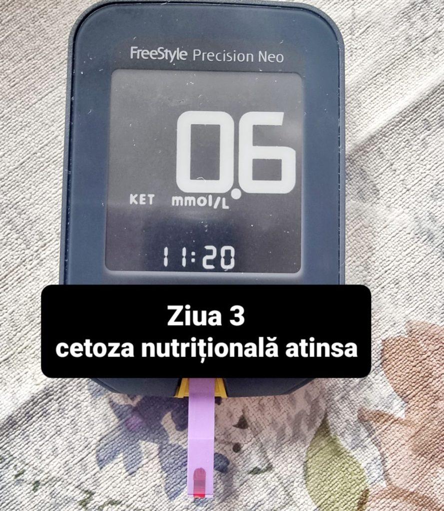 Cetoza nutritioala
